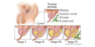 Image result for prostate