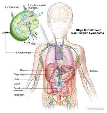 non hodgkin s lymphomas nhl