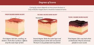 Caring For Minor Burns