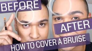 how to cover up bruises s injections etc color correction and concealing makeup talks