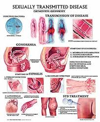 Sti Vs Std What Causes Sexually Transmitted Diseases Stds Or Sexually