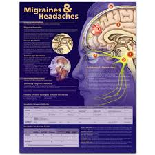 Different Types Of Headaches Chart Migraines And Headaches Chart Poster Laminated