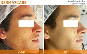 Acne behandeling ter verbetering van de huid | Derma2Care | Acne behandeling,  Acne, Puistjes