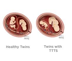 Types Of Twins Chart Twin To Twin Transfusion Syndrome Ttts Stages Diagnosis