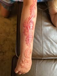 после временной тату в египте вся рука семилетней девочки покрылась