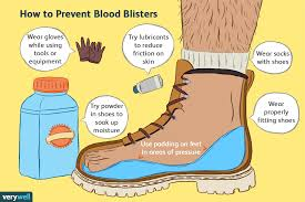 prevention thankfully the majority of blood blisters