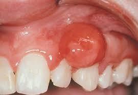 Доброкачественные опухоли полости рта что провоцирует виды лечение