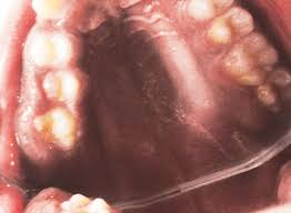 Oral Melanoacanthoma of a Rare Intraoral Site: Case Report and ...