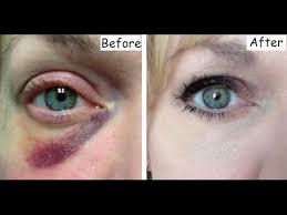 how to get rid of a black eye 6 amazing home remes that really works