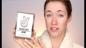 How To Use Acne Healing Dots ft. <b>Peace Out</b> & Allie Gardiner Glines ...