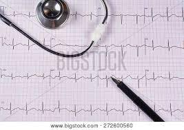 Electrocardiogram Ekg Image Photo Free Trial Bigstock