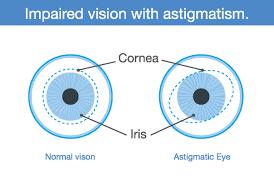 Astigmatism Chart Astigmatism