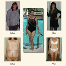 Weight Loss Surgery Patients turn to Tijuana Cosmetic Surgeon to ...