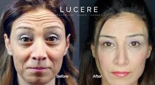the difference between botox restylane and juvederm