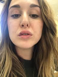 my lip injections restylane refyne