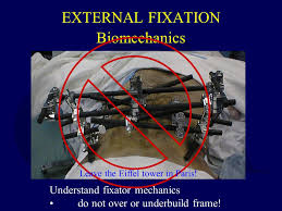 external fixator principles of external fixation ppt download