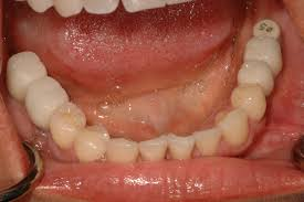 oasis dental specialist team provide wisdom tooth teeth extractions teeth removal when the tooth is too damaged decayed or infected