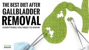 The Best Diet After Gallbladder Removal Everything You Need