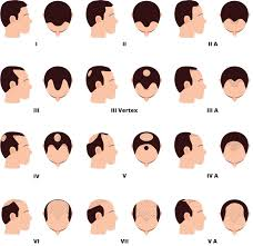 Male Pattern Baldness Causes Enchanting Male Pattern Baldness International Hair Studio