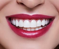 Cosmetic Dentistry Sparta Nj Porcelain Veneers Teeth