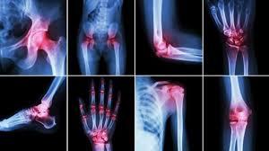 Rezultat slika za zglobovi