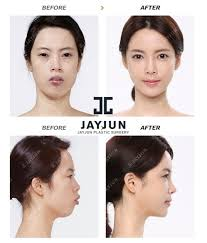 korean face contouring makeup korea contouring korea contouring surgery before and after korea