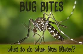 Do you Have a Bug Bite that Blisters? Learn How to Soothe Insect Bites