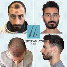 Before & After Hair Transplantation #saçekimi #saçekimiuzmanı  #saçekimmerkezi #saçekimiöncesi #saçekimisonrası #drs… | Hair transplant,  Hair plugs, Beard transplant