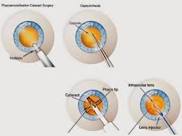 Cataract Surgery Phacoemulsification Restores Vision That Has Cloudy