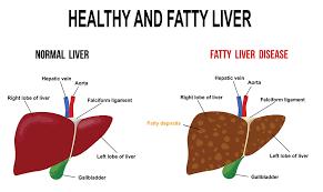 Diet Chart For Fatty Liver Grade 3 Fatty Liver Healthdirect