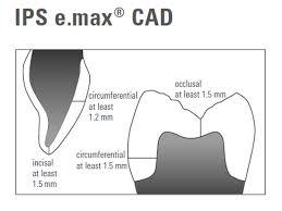 Emax Cad Firing Chart Chapter
