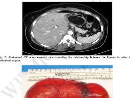 abdominal ct scan sagittal section
