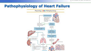 Pathophysiology Of Chf Perfusion Heart Failure And Pulmonary Embolism Youtube