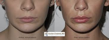 to reduce swelling after lip injections