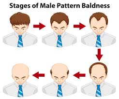 Male Pattern Baldness Stages Cool Decoration