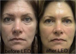 led facial rejuvenation treatment