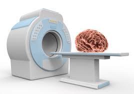 「脳卒中と予後予測」の画像検索結果