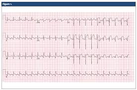 St Elevation Myocardial Infarction Journal Of Urgent Care Medicine
