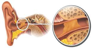 Image result for ear wax impaction