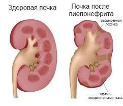 Реферат физкультура при пиелонефрите реферат Пиелонефрит ru Вид почки после перенесенного острого пиелонефрита