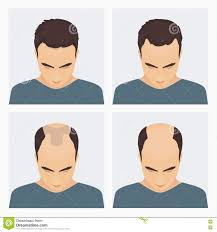 Male Pattern Baldness Stages Best Ideas