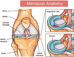 meniscus tear pro sports orthopedics