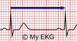 Telemetry Heart Rate Chart How To Calculate The Heart Rate On An Ekg