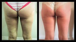 Contour Light Body Sculpting Before And After Contouring Cellulite Velashape Iii