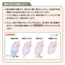 胸膜 癒着
