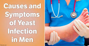 Causes and Symptoms of Yeast Infection in Men