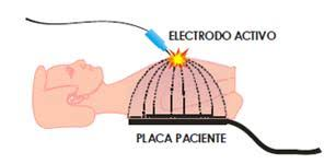 Image result for electrocirugia