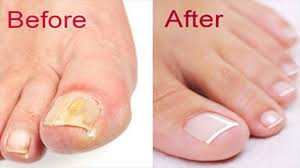 diy nail fungus remedy with baking soda le cider vinegar