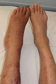 Leg Wikipedia Complex Regional Pain Syndrome Wikipedia