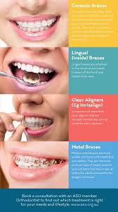 types of braces info straighten teeth without braces